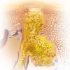 Акне: симптоми, причини виникнення та способи позбутися