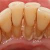 Що таке зубний камінь і як його видалити?