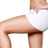 Феморопластіка - підтяжка внутрішньої сторони стегна
