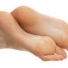 Як природним способом вилікувати мозолі на ногах