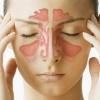 Як лікувати синусит природним чином?