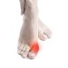 Кісточки на ногах: причини і методи лікування