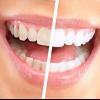 Методи відбілювання зубів